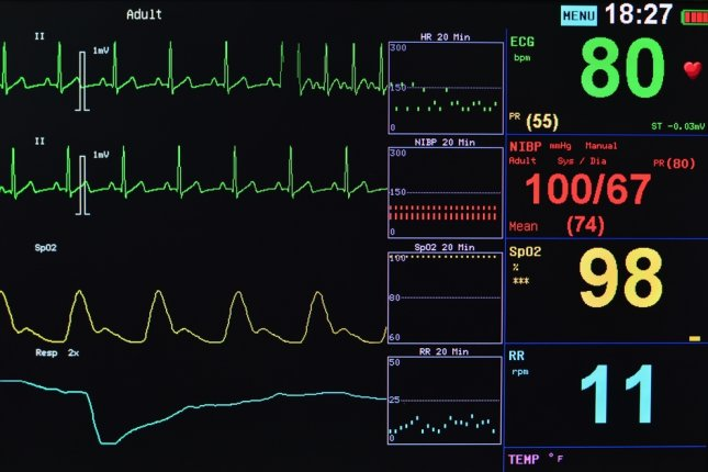Vital signs monitor. Photo by toysf400/Shutterstock