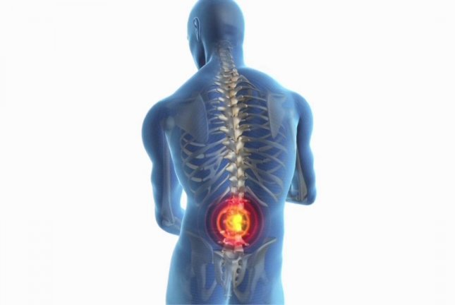 Electrical Pulses May Ease Sciatica Chronic Lower Back Pain Upi