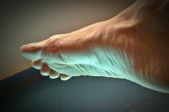 Gout is a type of arthritis caused by a buildup of uric acid in the joints, with symptoms often starting in the big toe. Photo by Alexis/Pixabay