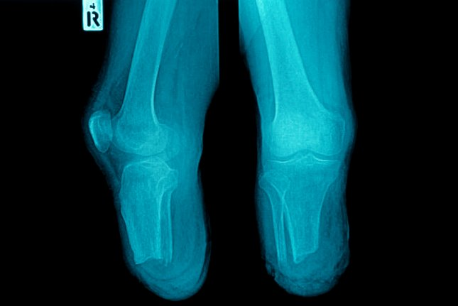 A less invasive procedure may help patients with clogged leg arteries live longer lives and avoid amputations. Photo by Tewan Banditrukkanka/Shutterstock