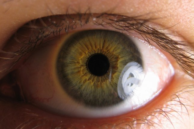 Researchers have developed a way to use an extract from the yellow spice turmeric in drops to treat the early stages of glaucoma. Photo by Ylem/Wikimedia Commons