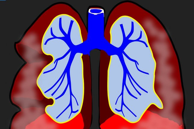 Thoracic radiotherapy for patients with lung cancer led to more than 10 percent of patients having heart attacks, heart failure and other cardiac episodes. Photo by Pixabay