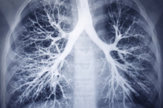 Researchers at the University of Colorado have found that the breast cancer driver HER2 is found in 3 percent of all lung cancers. File photo by Shutterstock/Guzel Studio/UPI