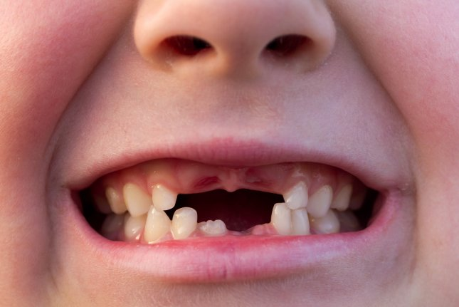 A study by the Centers for Disease Control and Prevention found fewer U.S. kids are plagued by tooth cavities compared with just a few years ago, but income disparities persist. File photo by CreativeNature R.Zwerver/Shutterstock