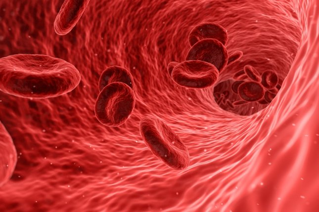Researchers say elevated levels of a specific blood clotting factor are at higher risk for serious complications from COVID-19. photo by qimono/pixabay