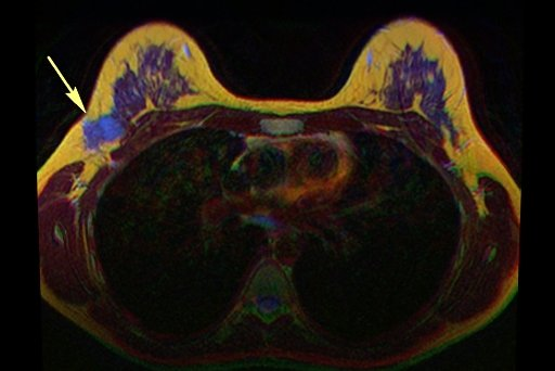 Newer Mri May Be More Accurate Easier For Detection Of Breast