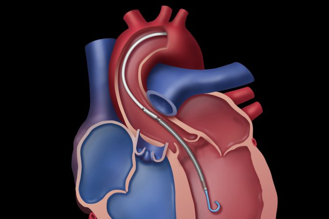 Survival among heart patients on a waiting list for a transplant has improved greatly over the past 30 years, a new study has found. Illustration courtesy Abiomed