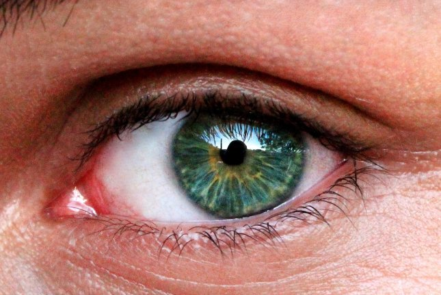 A new genetic test can help spot glaucoma, researchers say. Photo by Requieri Tozzi/Pixabay