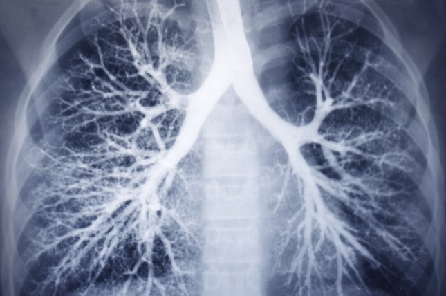 Subtypes May Change The Microbiome In Lungs With Copd Upi