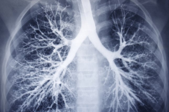 Patients diagnosed with non-small cell lung cancer, or NSCLC, between 1994 and 2001 had 15 percent chance of living past five years. File Photo by UPI/Shutterstock/Guzel Studio