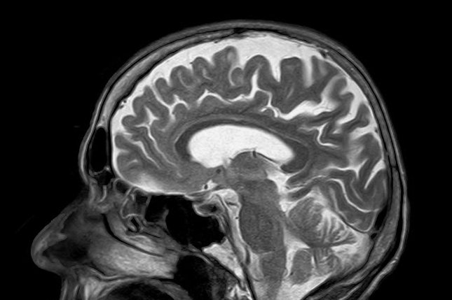 New research describes how COVID-19 may infect the brains of some patients. Photo by toubibe/Pixabay