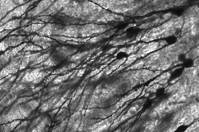 Bigger, longer neurons in the human brain allow for more distantly space dendrites, enhancing each neuron's compartmentalization. Photo by MethoxyRoxy/Wikimedia Commons